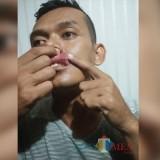 Korban Guruh tunjukkan mulutnya yang pecah terkena pukulan (Foto : Dokpol / TulungagungTIMES)