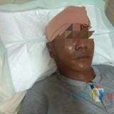 Korban alami luka serius di dahi hingga 13 cm (Foto : Dokpol / TulungagungTIMES)