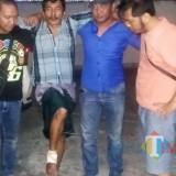 Kaki pelaku diperban saat berada di Polres Situbondo. (Foto Heru Hartanto/Situbondo TIMES)