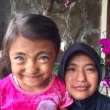 Lala dan ibunya Hermiati menunjukkan kedua matanya di rumahnya�Jalan TVRI/Klengkeng gang 3, Desa Oro-Oro Ombo, Kecamatan Batu, Kota Batu. (Foto: Irsya Richa/MalangTIMES)