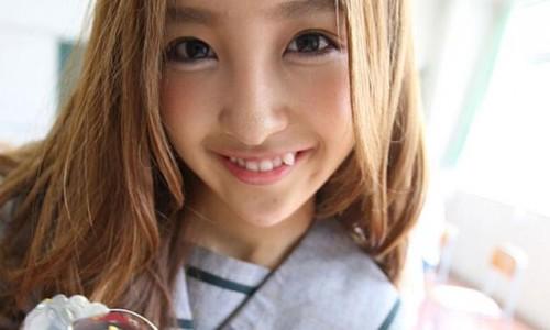 Gigi gingsul merupakan standart kecantikan di Jepang. (Foto: istimewa)