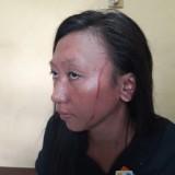 Korban Wiji alami luka di wajah (foto : Dokpol / TulungagungTIMES)