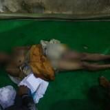Kondisi korban yang disambar petir