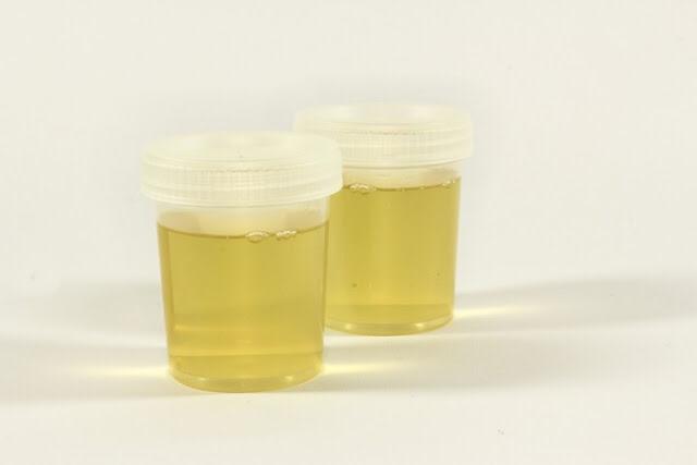 Air kencing perjaka diperjual belikan di China. (Foto: istimewa)