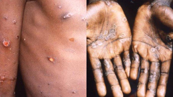 Penyakit cacar monyet atau monkeypox. (Foto istimewa)