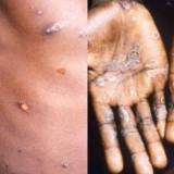 Selain Vaksin, Inilah Hal-hal yang Perlu Dihindari untuk Pencegahan Penyakit Cacar Monyet