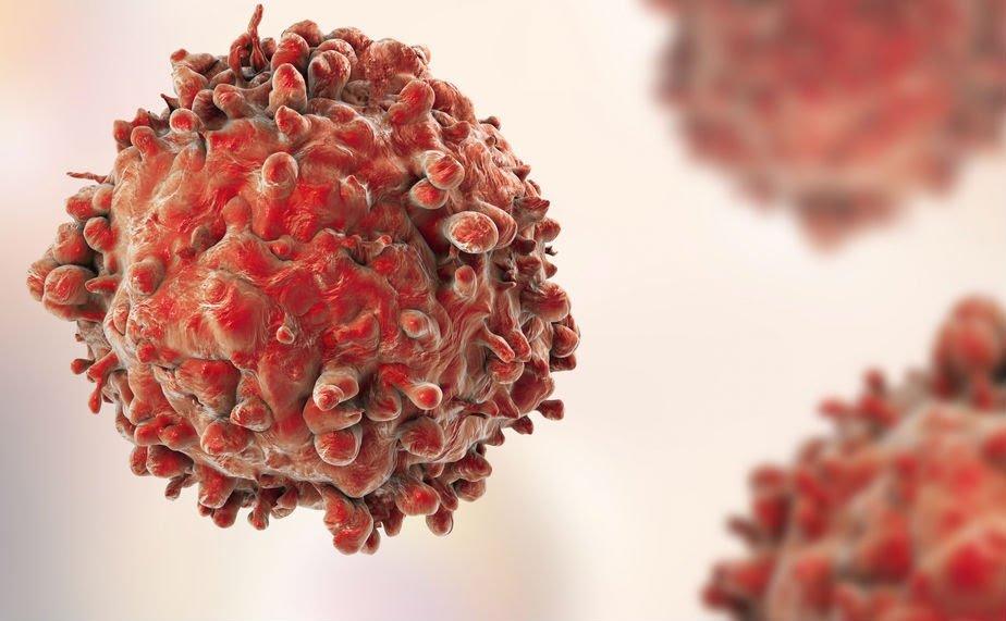 Ilustrasi sel kanker. (Foto istimewa)