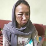 Korban Puji Astutik saat melapor ke Polsek Kalangbret Tulungagung. / Foto : Dokpol / Tulungagung TIMES