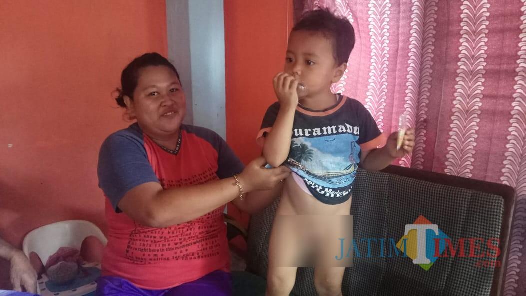 Rehan, bocah yang diduga dikhitan jin bersama Ibunya Riski Amalia