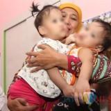 Gubernur Jatim Khofifah bersama bayi kembar siam