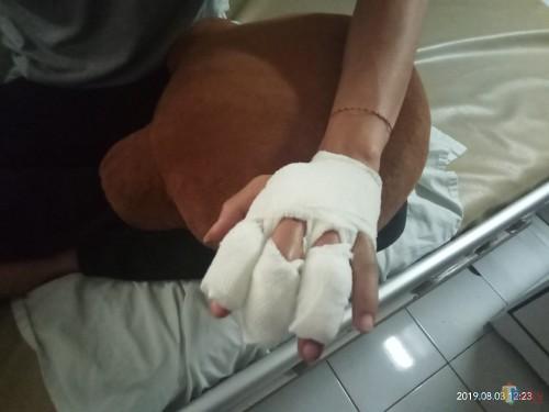 Jari tangan korban yang sempat dipukul dengan palu hingga harus menjalani operasi. (Anggara Sudiongko/MalangTIMES)