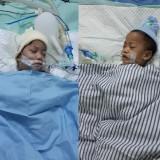 Dua bayi kembar yang berhasil dipisahkan.