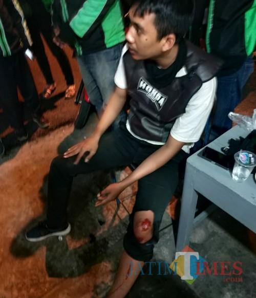 Riko yang terluka kaki akibat jatuh dari sepeda motor / Foto : Abimanyu / Tulungagung TIMES