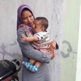 Bayi  10 Bulan di Kota Malang Ini Derita Meningokel sejak Lahir