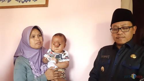 Wali Kota Malang Sutiaji (kanan) saat menyambangi bayi pengidap meningokel (Pipit Anggraeni/MalangTIMES).