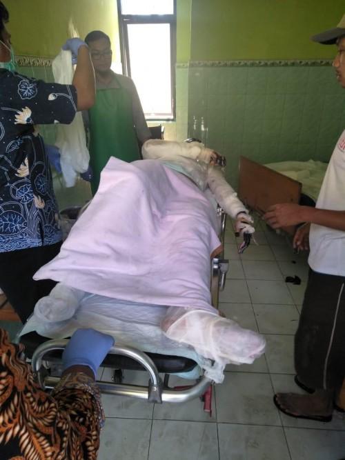 Anton korban kebakaran yang mengalami luka bakar hingga 75 persen saat mendapatkan perawatan di RSSA Kota Malang (Foto : Polsek Turen for MalangTIMES)