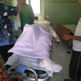 Alami Luka Bakar Hingga 75 Persen, Korban Kebakaran Akhirnya Dirujuk Ke RSSA Kota Malang