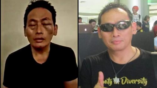 Ninoy relawan Jokowi akhirnya melaporkan penculikan dan penganiayaan ke kepolisian yang bergerak cepat menciduk pelaku (Ist)