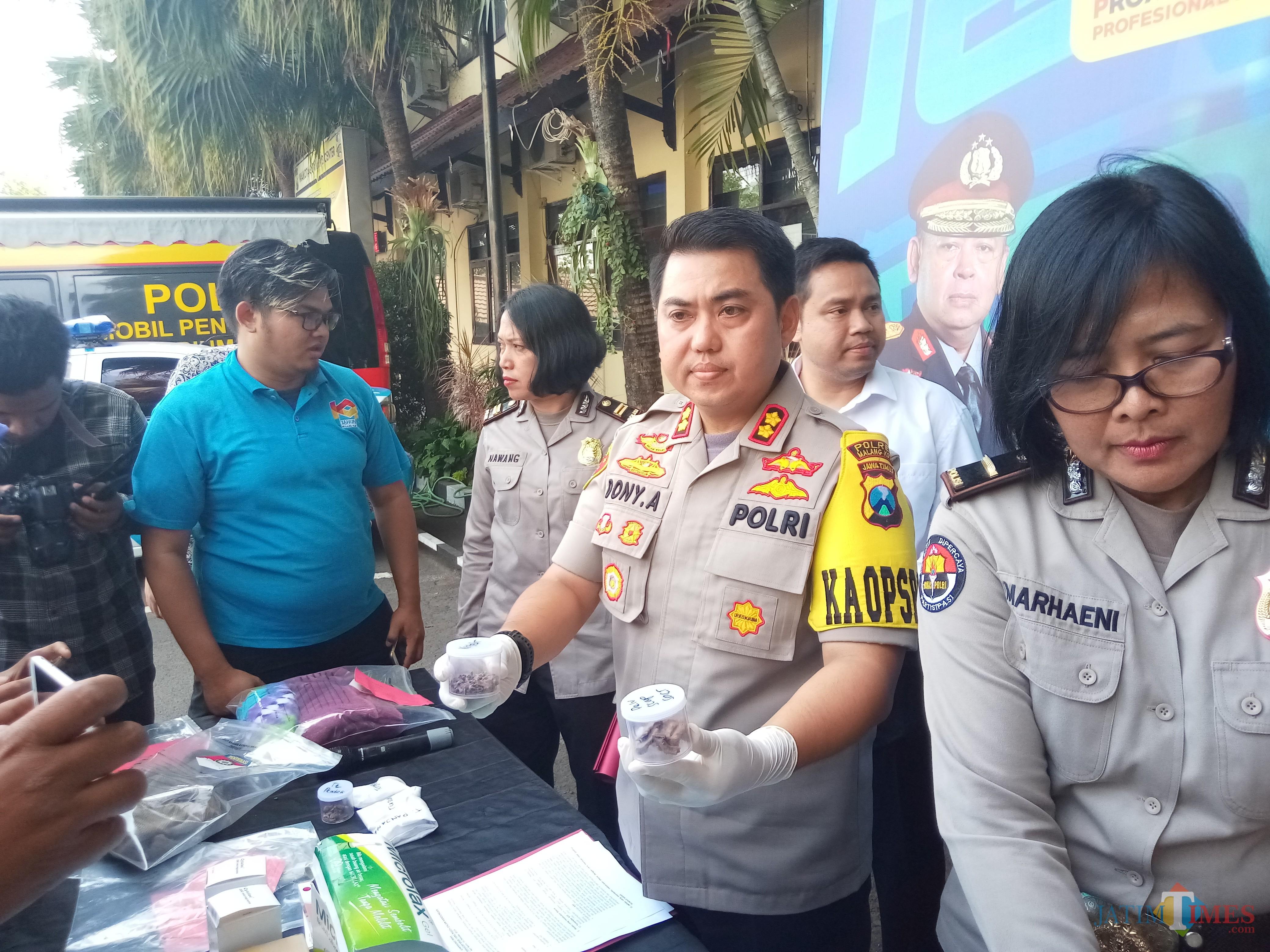 Kapolres Malang Kota AKBP Dony Alexander SIK, MH, saat menunjukan barang bukti tulang dari janin yang ditemukan petugas di lokasi penguburan bayi di Pasuruan (Anggara Sudiongko/MalangTIMES)