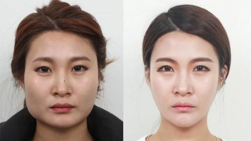 Dari kiri wajah sebelum dioperasi dan kanan sesudah dioperasi bagian rahang. (Foto: istimewa)