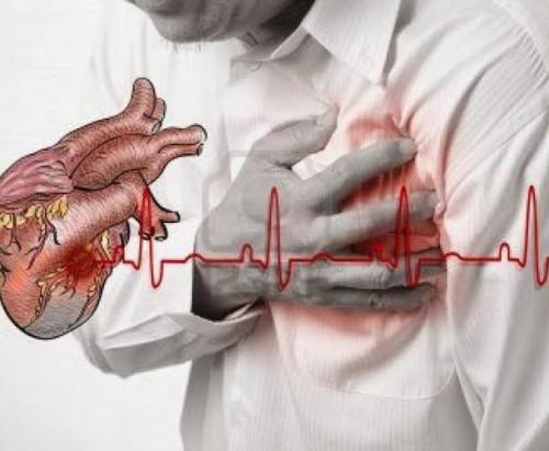 Kasus Serangan Jantung Ashraf Sinclair, Momok Kesehatan yang Jadi Fokus Pemkab Malang