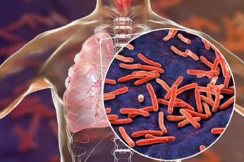 Ilustrasi serangan bakteri Mycobacterium Tuberculosis. (Ist)