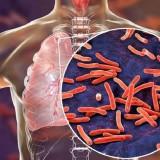 TBC, Cakar Maut Sunyi di Tengah Hebohnya Virus Corona