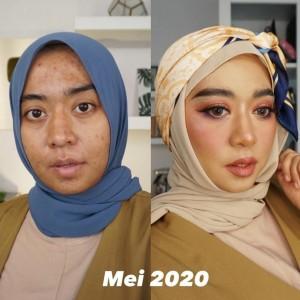 Jerawatan Parah Akibat Krim Pemutih, Beauty Vlogger Ini Vindy Ungkap Kiat hingga Bisa Pulih