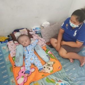 Bocah 7 Bulan Ini Derita Hidrosefalus, Keluarga Berharap Anaknya Dapat Jaminan Kesehatan