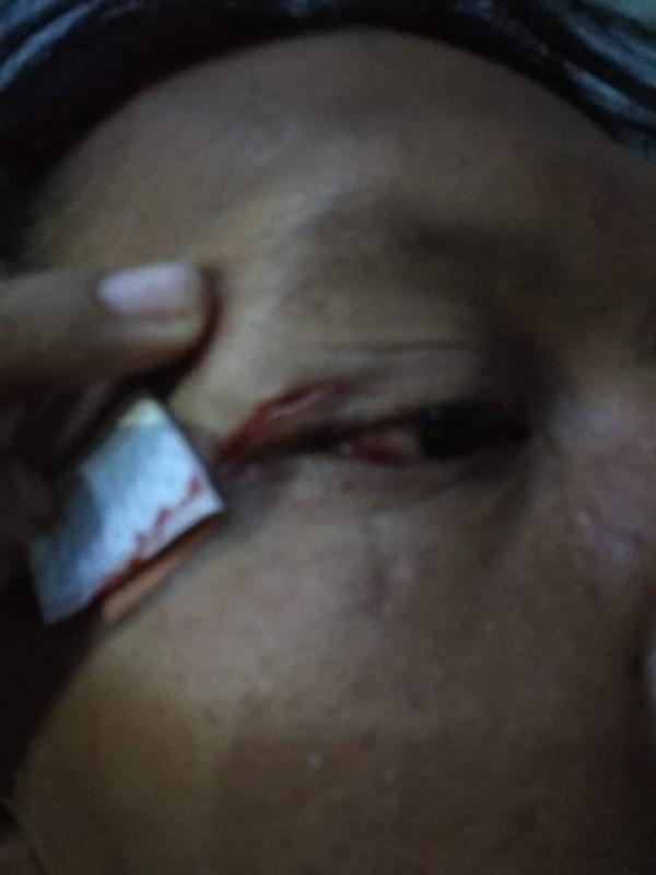 Kondisi korban yang mengalami luka pada pelipis usai terkena pukulan pelaku begal. (Ist)