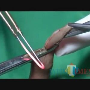 Berbahaya, Sunat dengan Teknik Electrical Cauter Tidak Dianjurkan