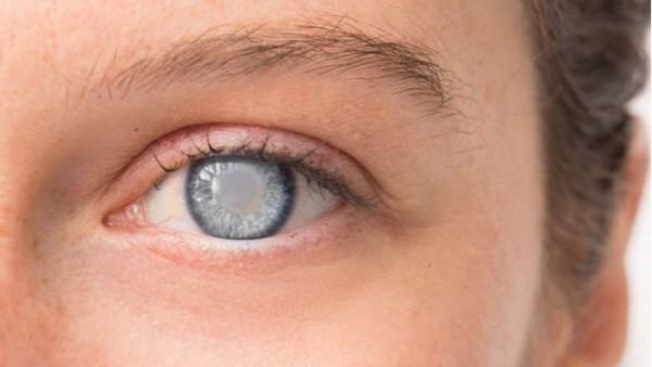 Ilustrasi penyakit katarak (Shutterstock)